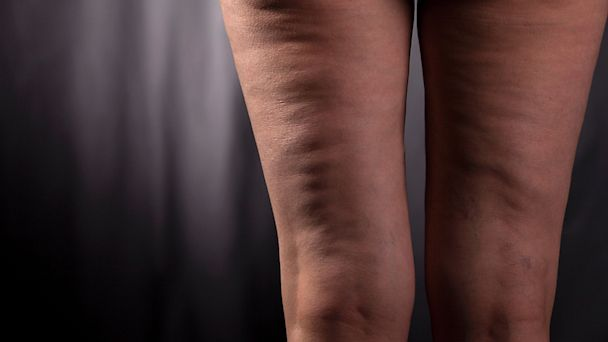 15 Myths And Facts About Cellulite Abc News