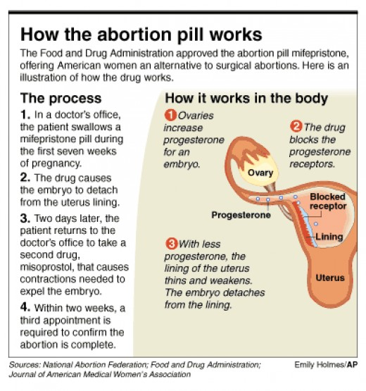 How the abortion pill works Abortion Pinterest - medical claim form