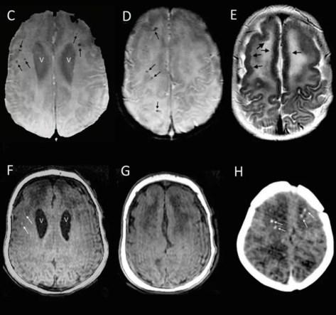 Imagens de ressônancia do cérebro de duas crianças avaliadas no estudo dos CDC (Foto: CDC/Divulgação)