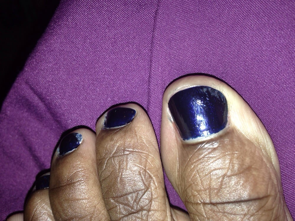 Excuse My Ugly Toes But My Toenail Paint All Jacked Up