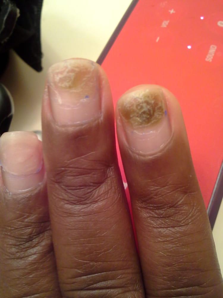 Bruised Nail Beds Healthy Nail Growth Below The Damage