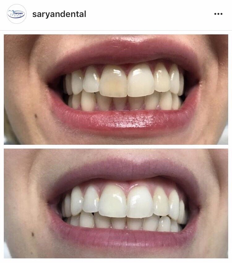 Internal bleaching on discolored tooth 1 week after bleaching