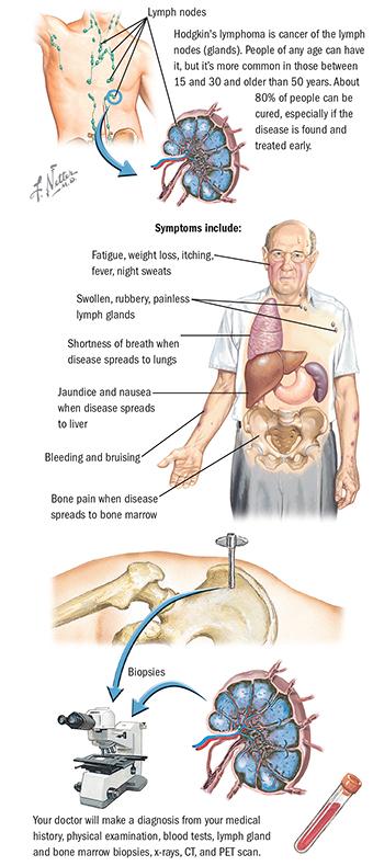 Sentinel Lymph Node Biopsy Spectrum Health