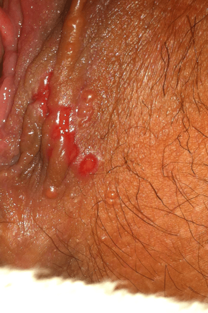 Herpes Outbreaks From Oral Sex? 2