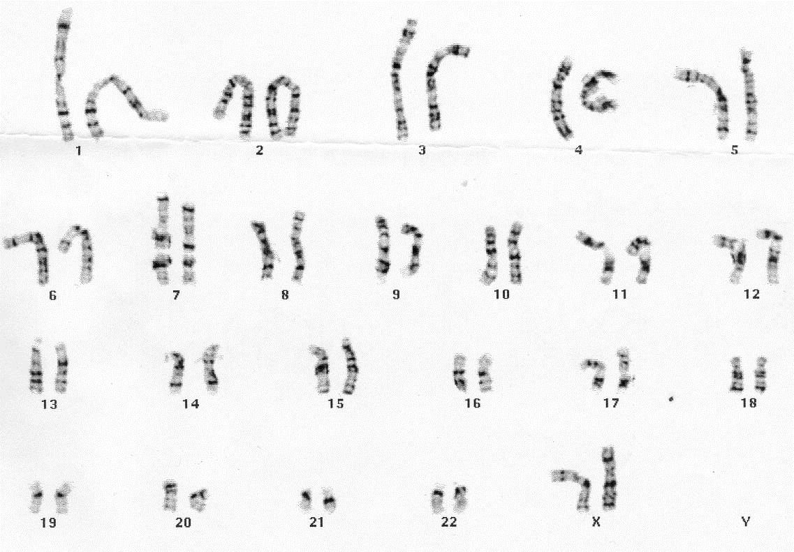 Chromosome Girl Dna And Chromosomes Bsci 1510l Literature And Stats