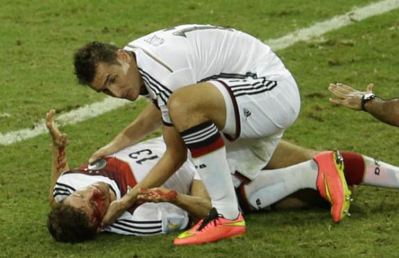Soccer Quotinjuriesquot Vs Hockey Injuries