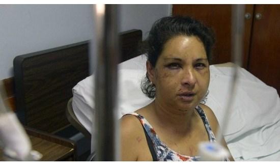 Estación Díaz: hombre desfiguró a golpes a su mujer y la dejó en la calle
