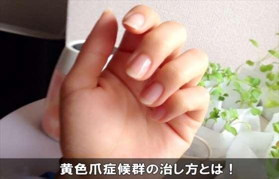oushokusoushoukougunnaosu20-1