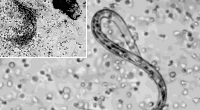 parasites-up-close-worm-in-cells-cellular-level