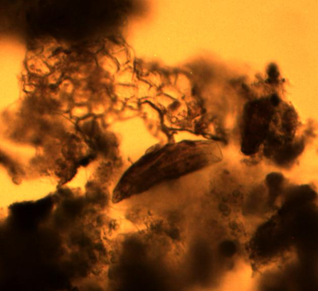 Freshwater microorganism images
