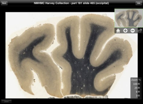 Screenshot for a slice of the brain on iPad app