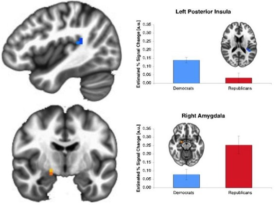 Republicans and Democrats differ in the neural mechanisms activated while performing a risk-taking task (Credit: PLoS ONE)