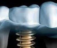 implantate2