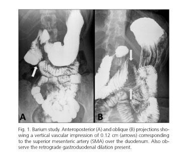 Síndrome de la arteria mesentérica superior consideraciones