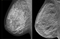 2D mammography vs digital breast tomography