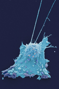 A breast cancer cell