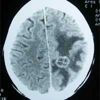 Scan of brain