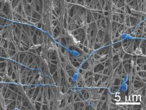 The electrospun fibers can release chemicals or they can physically block sperm, as shown here.
