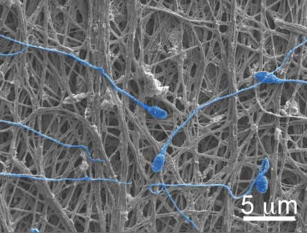 Skin cells from infertile men made into early stage sperm