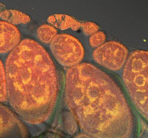 Muscle weakness seen in alcoholism linked to mitochondrial repair issues