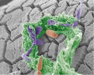 Type 1 diabetes: Gut bugs may influence autoimmune processes