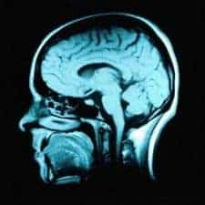Depression may increase your risk of Parkinson's