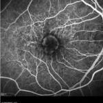 Cheaper anti-cancer drug as effective as expensive drug in treating wet AMD