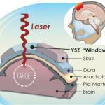 skull implant win dow to brain