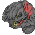 Study shows Where Alzheimer's starts and how it spreads