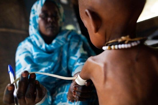 Consequences of Malnutrition May Be Reversible Later in Childhood