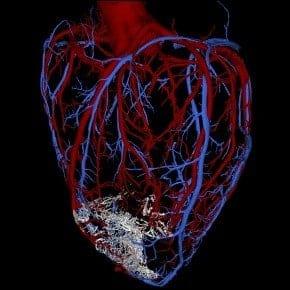 Scientists regenerate heart muscle in primates