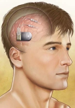 Brain Stimulator Offers Hope for Individuals With Uncontrolled Epilepsy
