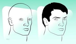 Alopecia-Hair-Restoration-YNews