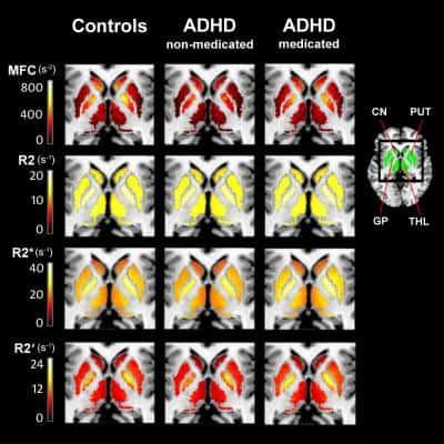 MRI technique may help prevent ADHD misdiagnosis