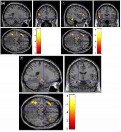 Neural sweet talk: Taste metaphors emotionally engage the brain