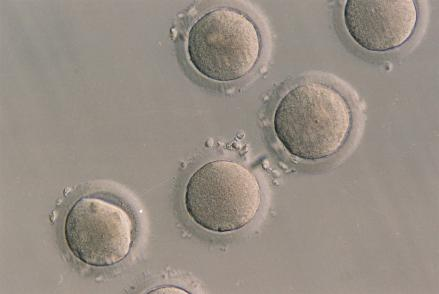 Discovery may make it easier to develop life-saving stem cells