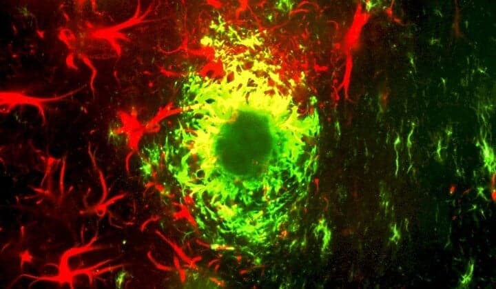Experimental cancer drug restores memory in mouse model of Alzheimer's