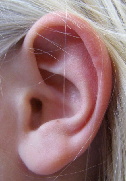 I ask every person is: Do you ever hear any sounds or noises in your ears 2