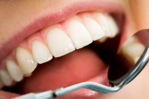 Dental Patient Education - A picture of a beautiful smile with a dental mirror.