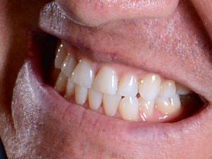 Dr. Medina Smiles at Smiles Dental
