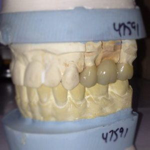 3 unit dental bridge, still on the models.