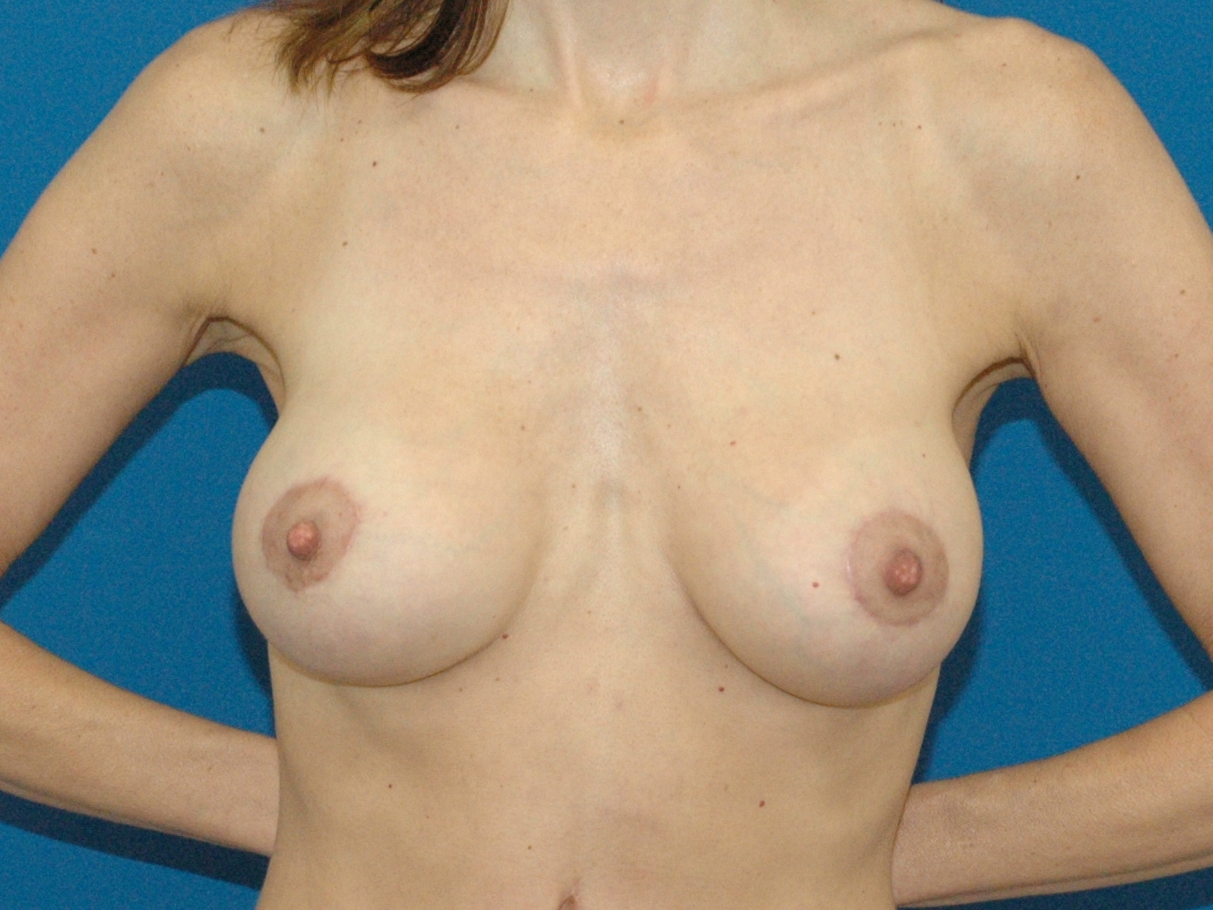 photo of after breast implant and mastopexy