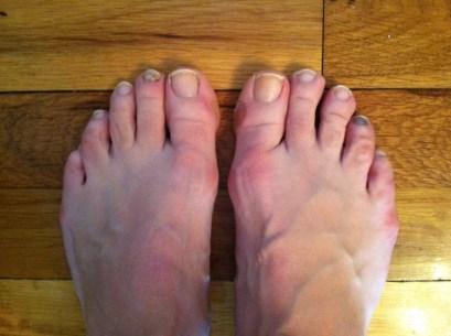 black toenails plantar plate tear toe drift