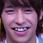 八乙女光に歯並び矯正やハゲ疑惑?八重歯やおでこ画像で検証!