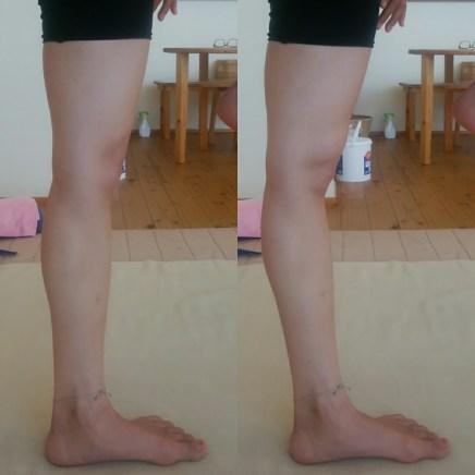 膝の過伸展
