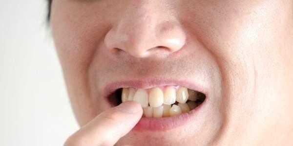 顎に梅干しみたいなしわが…「梅干し顎」の原因と治療法を解説