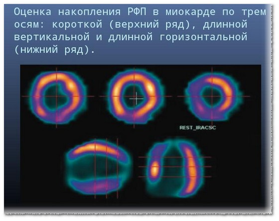 Сцинтиграфия миокарда где сделать в москве