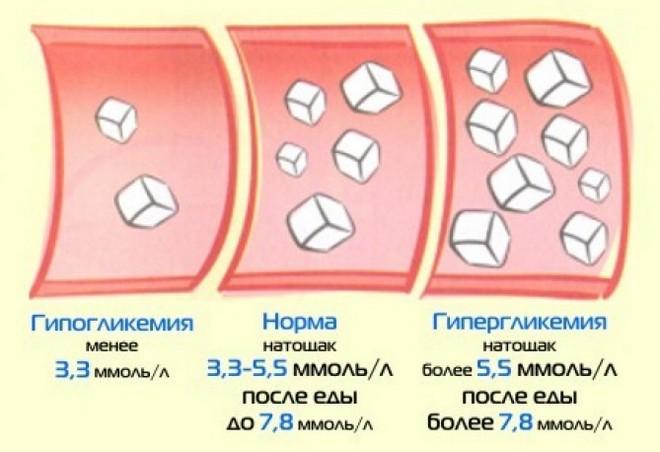 допустимое содержание сахара в крови и причины отклонений