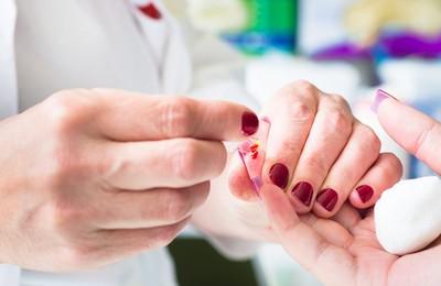 Гипохромия в общем анализе крови: причины, симптомы, лечение