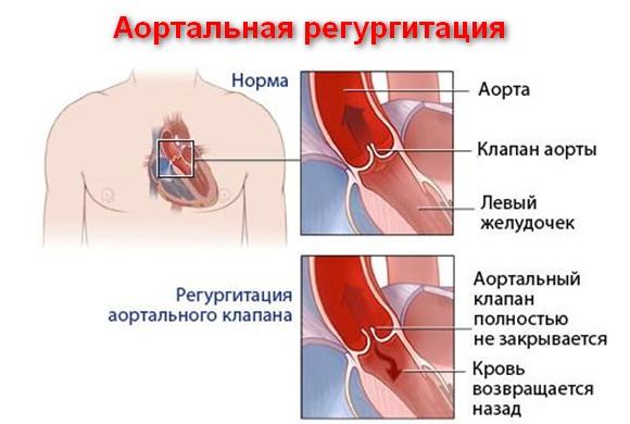 Регургитация аортального клапана: что это, причины, лечение